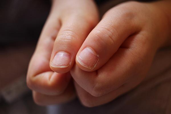 指吸でボロボロになった爪